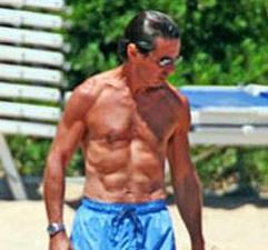 Os músculos de Aznar, resultado de múltiples operaciónscirúrxicas