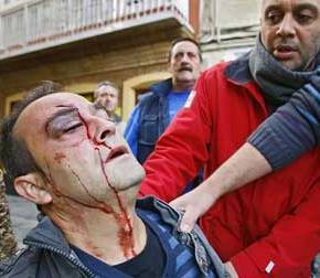Varios feridos de consideración polo estourido de castañas durante omagosto